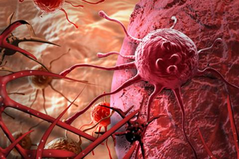 Sự thực ai cũng có tế bào ung thư | làm cách nào để chặn chúng bây giờ 9