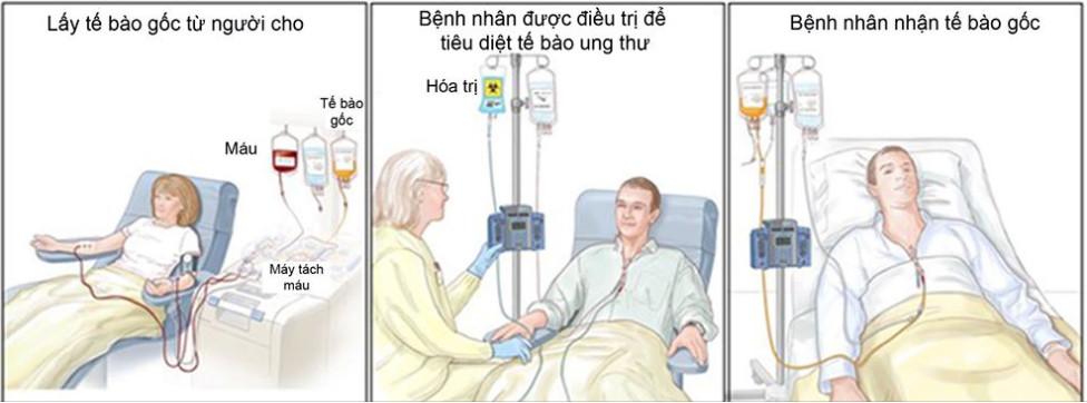 Các bệnh ung thư hiện nay đang được điều trị bằng tế bào gốc 1