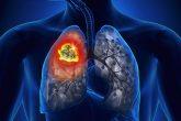 Ung thư phổi chiếm 50% số ca và nhiều phụ nữ không hề hút thuốc cũng bị 14