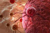 Bắp cải vừa ngon vừa khỏe chữa ung thư | chống lão hóa 2