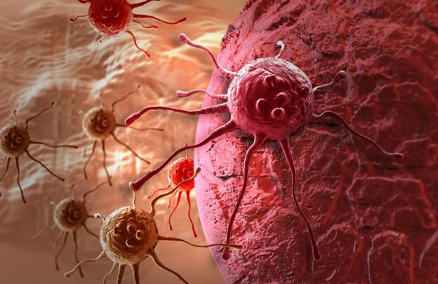 Tế bào ung thư gây độc tế bào lành như thế nào 1