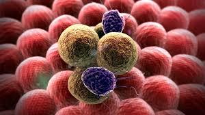 Ung thư nguyên phát khác với ung thư di căn như thế nào 7