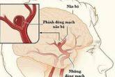 Bài thuốc gia truyền cho bệnh nhân đau dạ dày, tá tràng 7