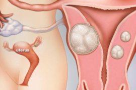 Chữa vô sinh mà không cần tinh trùng khó tin quá 9
