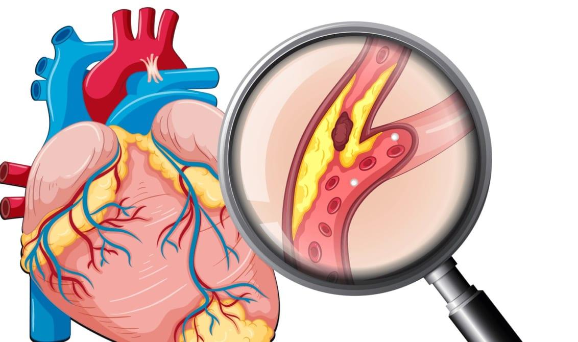 Magie và cần sa tác động tới mạch vành và triệu chứng rối loạn nhịp tim 1