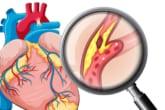 Ngoại trừ Omage 3s Vitamin chẳng có lợi ích gì cho bệnh tim mạch 2