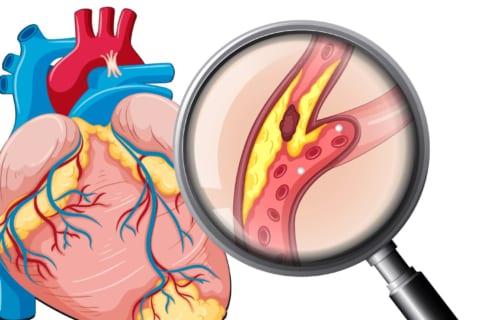 Magie và cần sa tác động tới mạch vành và triệu chứng rối loạn nhịp tim 4